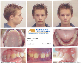 Initial Ortho Pictures